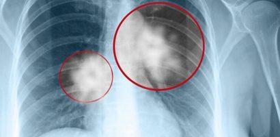Ung thư phổi nguy hiểm như thế nào?