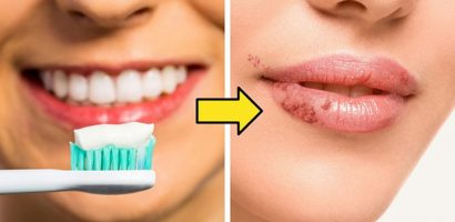 10 mẹo làm đẹp truyền miệng có thể gây hại cho sức khỏe nếu áp dụng
