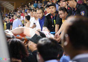 Người bắn pháo sáng làm cổ động viên nhập viện có thể bị xử lý hình sự
