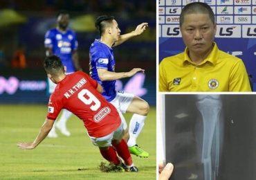Đau đớn nhìn Hùng Dũng gãy chân, HLV Hà Nội tha thiết: 'Xin đừng triệt hạ đồng nghiệp'